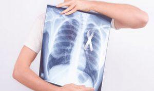 Kanker Paru-Paru menjadi salah satu sebab kematian terbanyak di Dunia