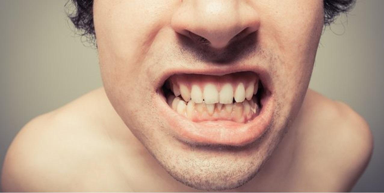 Apa dampak karang gigi